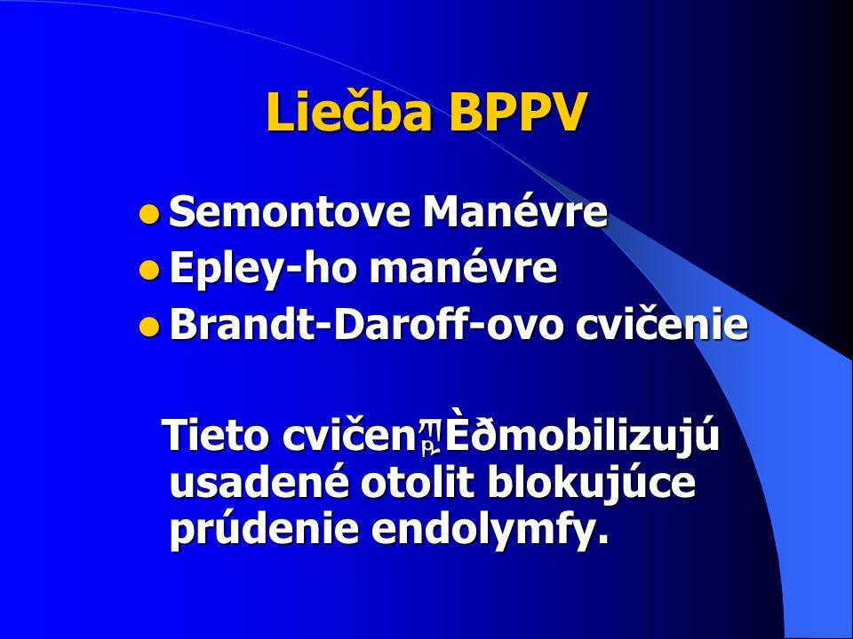 Liečba BPPV Semontove Manévre Epley-ho manévre