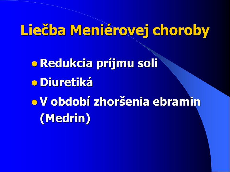 Liečba Meniérovej choroby