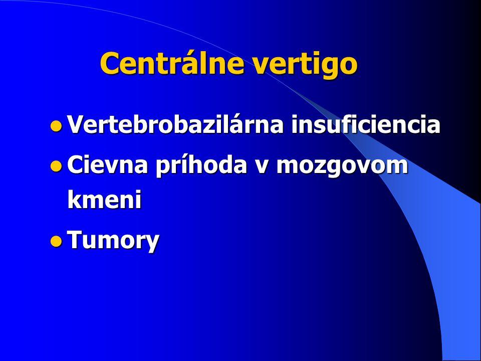 Centrálne vertigo Vertebrobazilárna insuficiencia