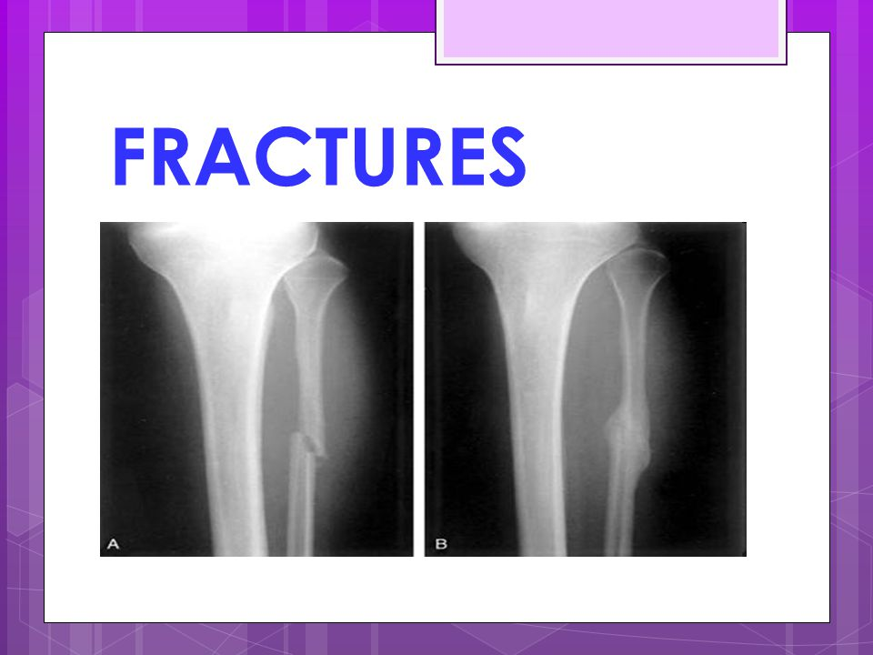 FRACTURES See the callus Hard or soft