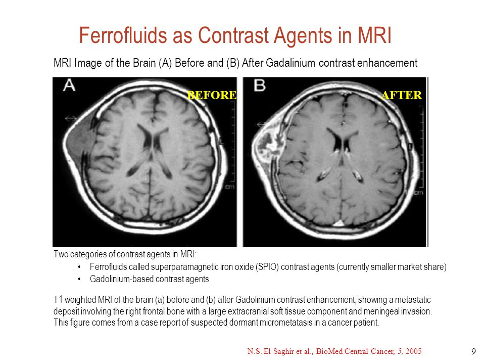 Ferrofluids as Contrast Agents in MRI