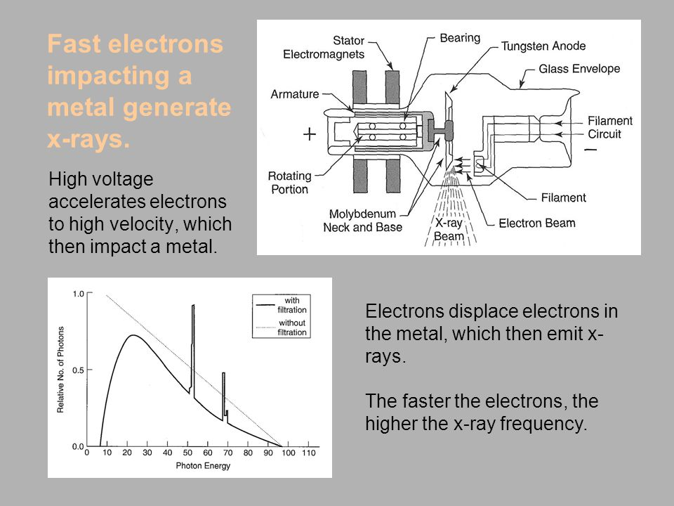 Fast electrons impacting a metal generate x-rays.