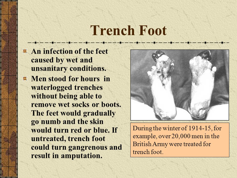 Trench Foot An infection of the feet caused by wet and unsanitary conditions.