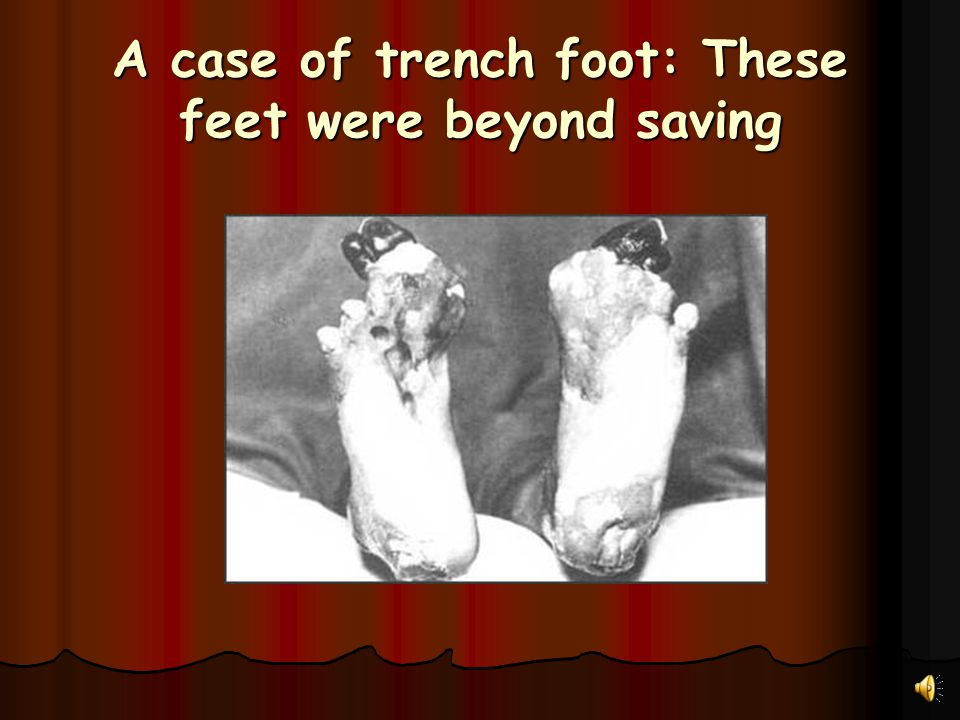 A case of trench foot: These feet were beyond saving