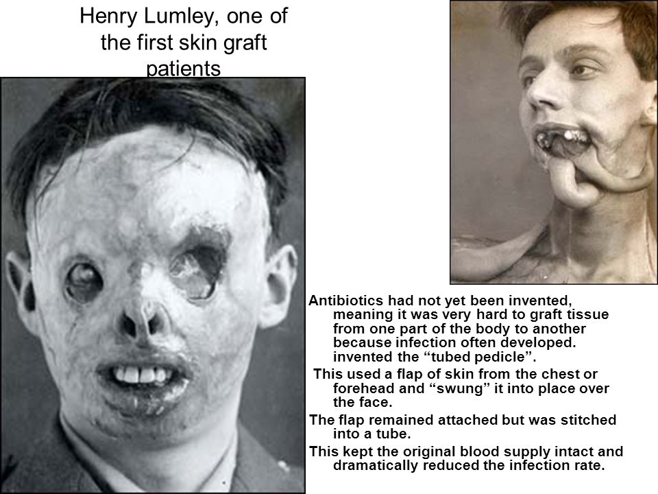 Henry Lumley, one of the first skin graft patients