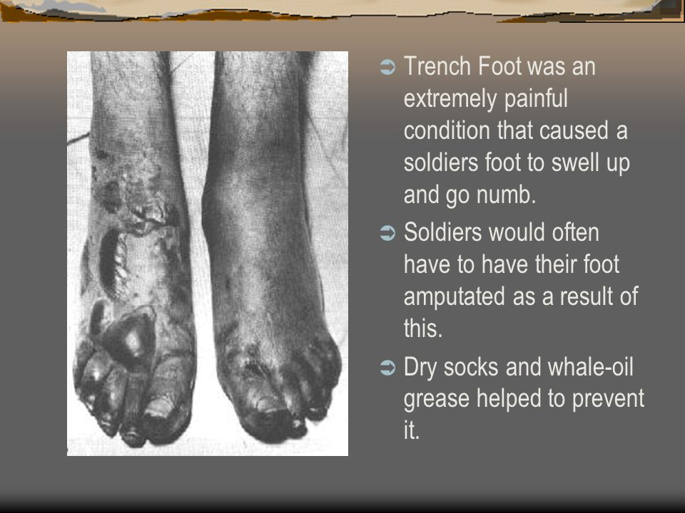 Trench Foot was an extremely painful condition that caused a soldiers foot to swell up and go numb.