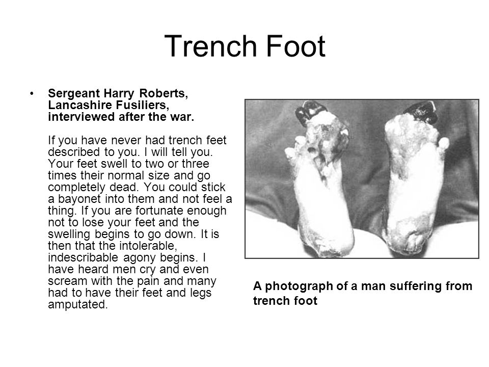 Trench Foot