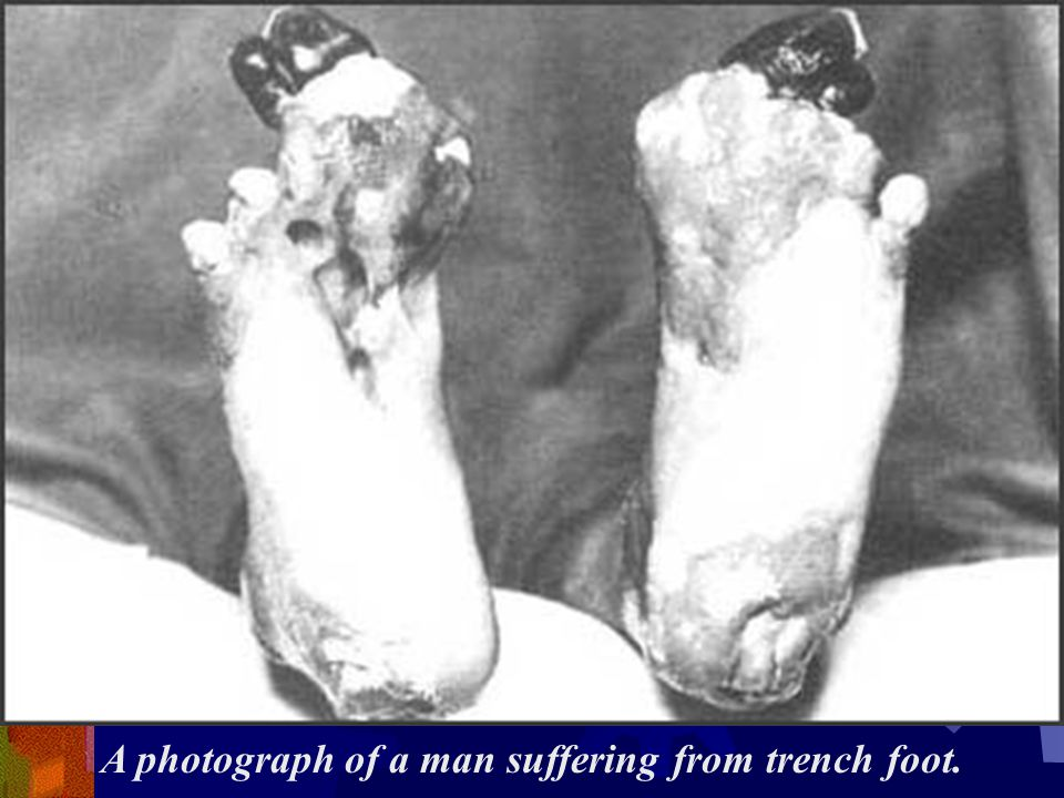 A photograph of a man suffering from trench foot.