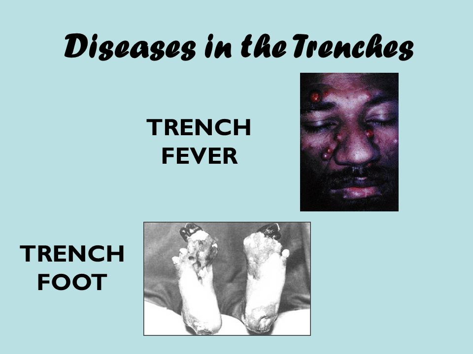 Diseases in the Trenches