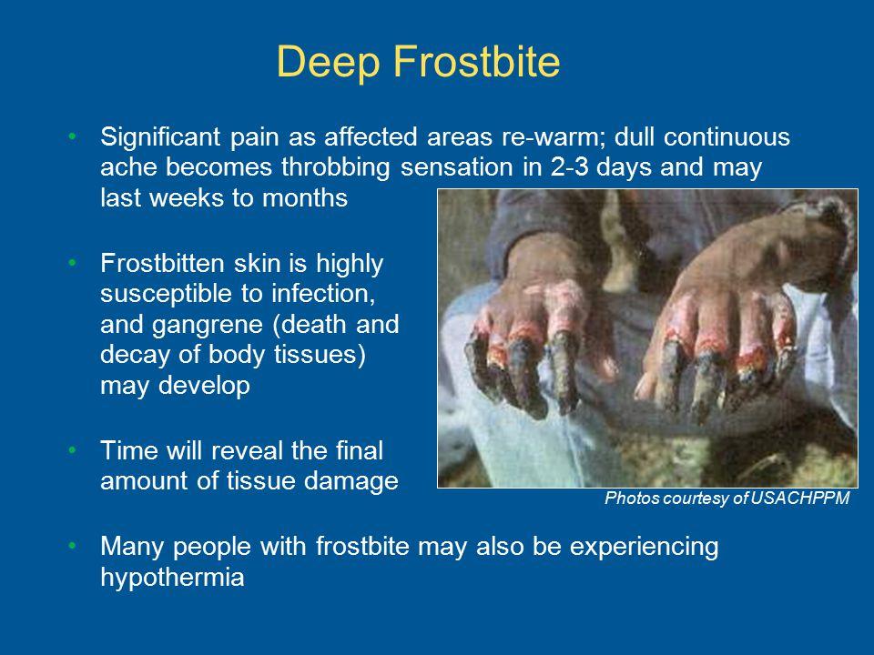 Deep Frostbite