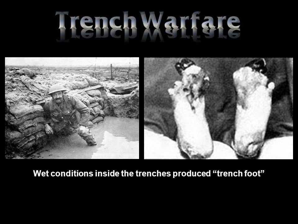 Wet conditions inside the trenches produced trench foot