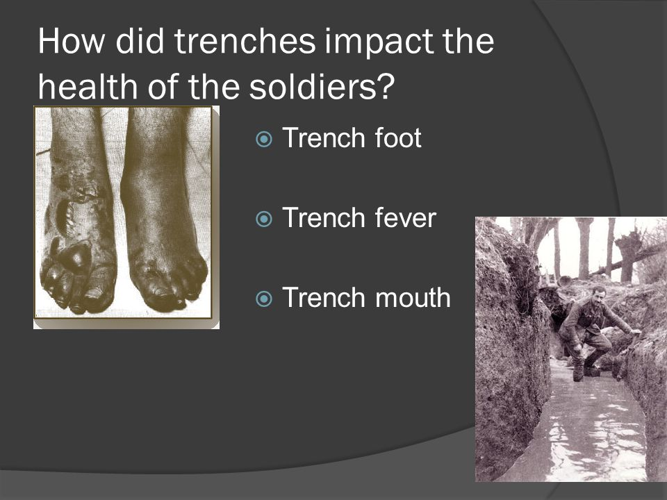 How did trenches impact the health of the soldiers
