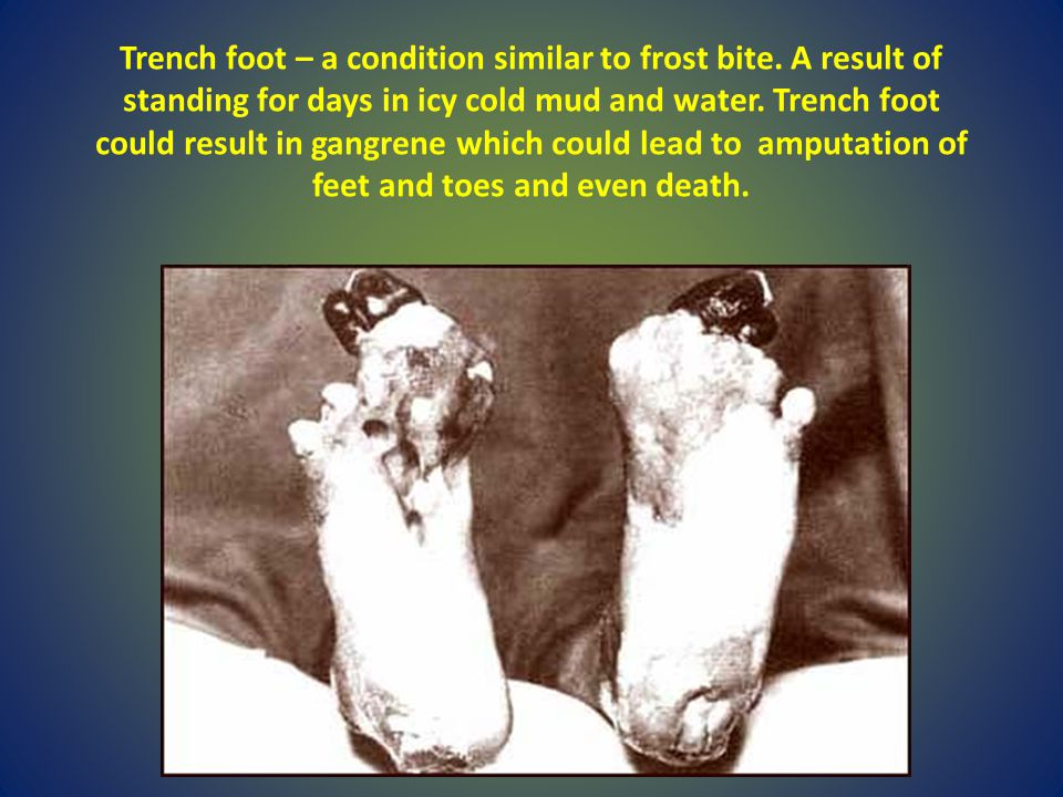Trench foot – a condition similar to frost bite