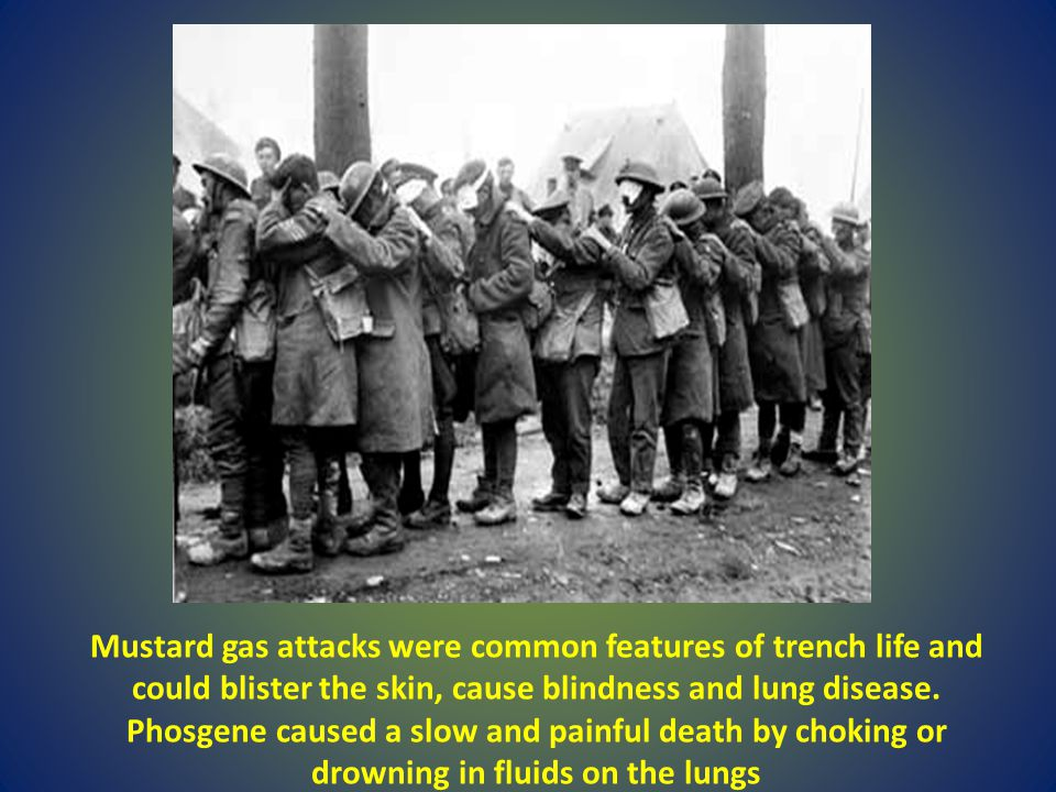 Mustard gas attacks were common features of trench life and could blister the skin, cause blindness and lung disease.