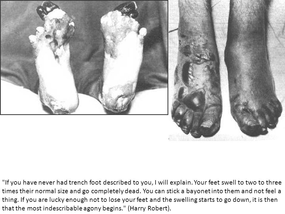 If you have never had trench foot described to you, I will explain