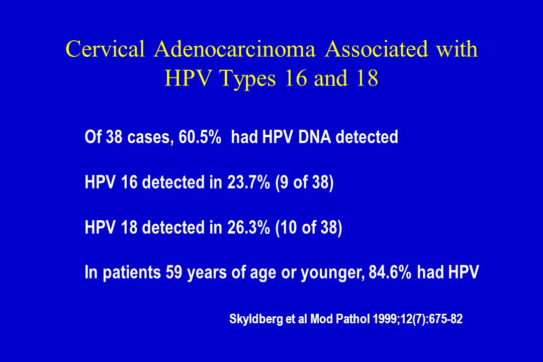 Cervical Adenocarcinoma Associated with HPV Types 16 and 18