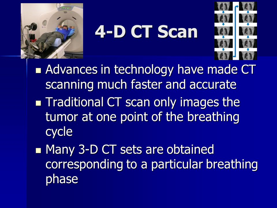 4-D CT Scan Advances in technology have made CT scanning much faster and accurate.