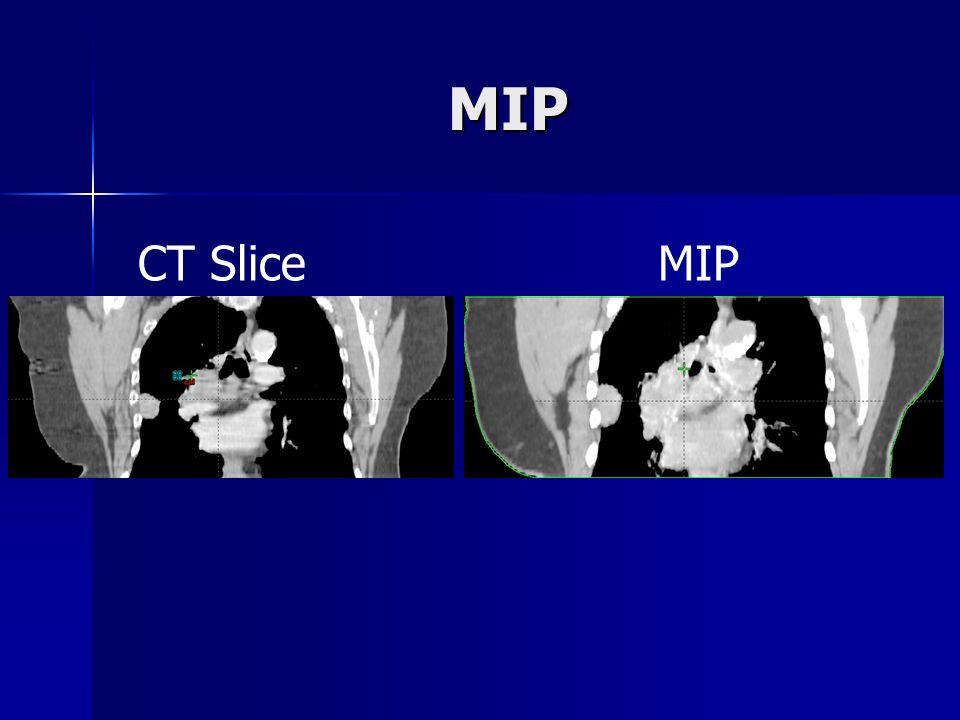 MIP CT Slice MIP