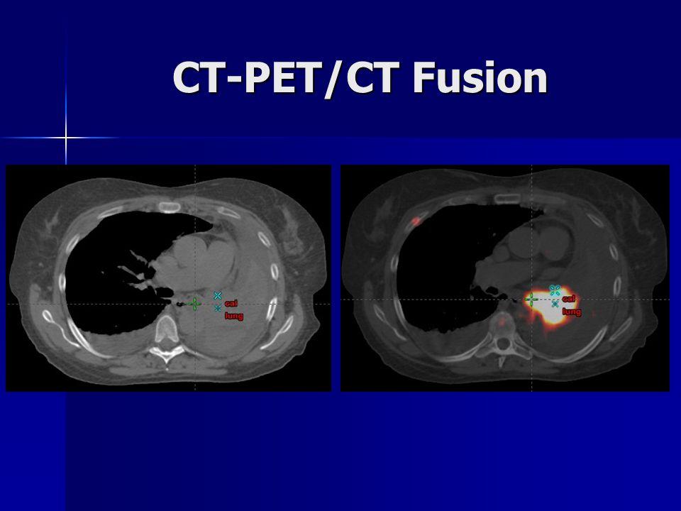 CT-PET/CT Fusion