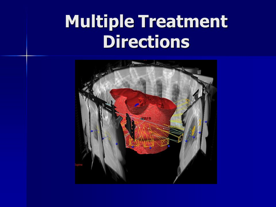 Multiple Treatment Directions