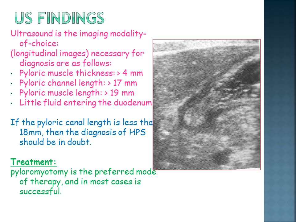 US findings Ultrasound is the imaging modality-of-choice:
