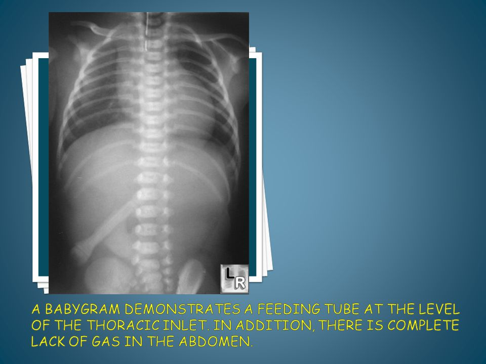 A babygram demonstrates a feeding tube at the level of the thoracic inlet.