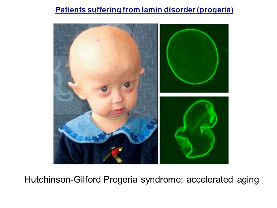Hutchinson-Gilford Progeria syndrome: accelerated aging
