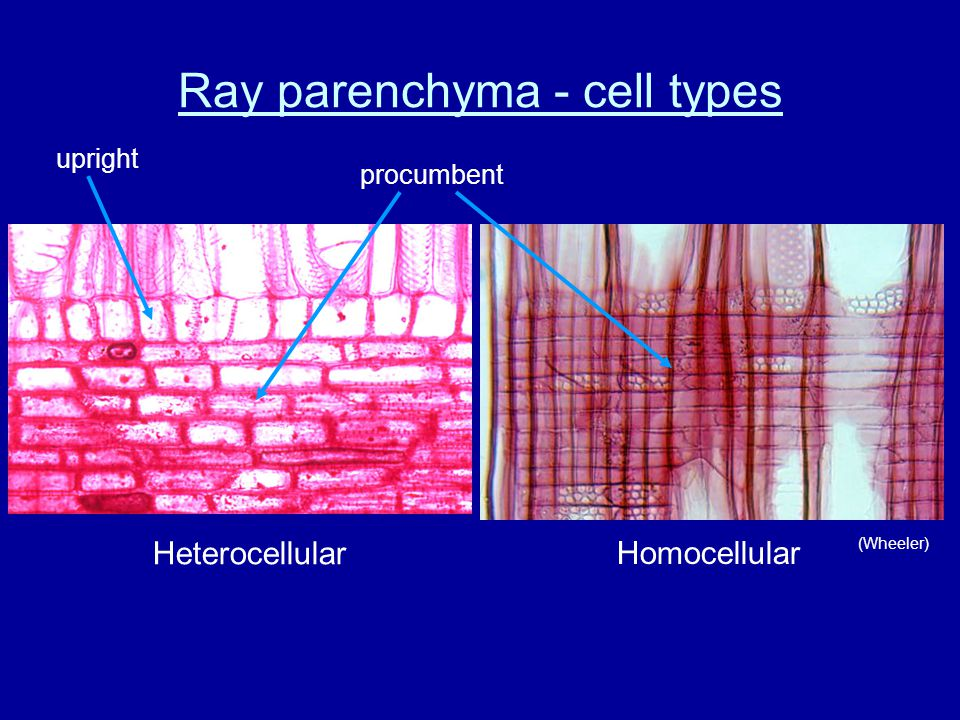 Ray parenchyma - cell types