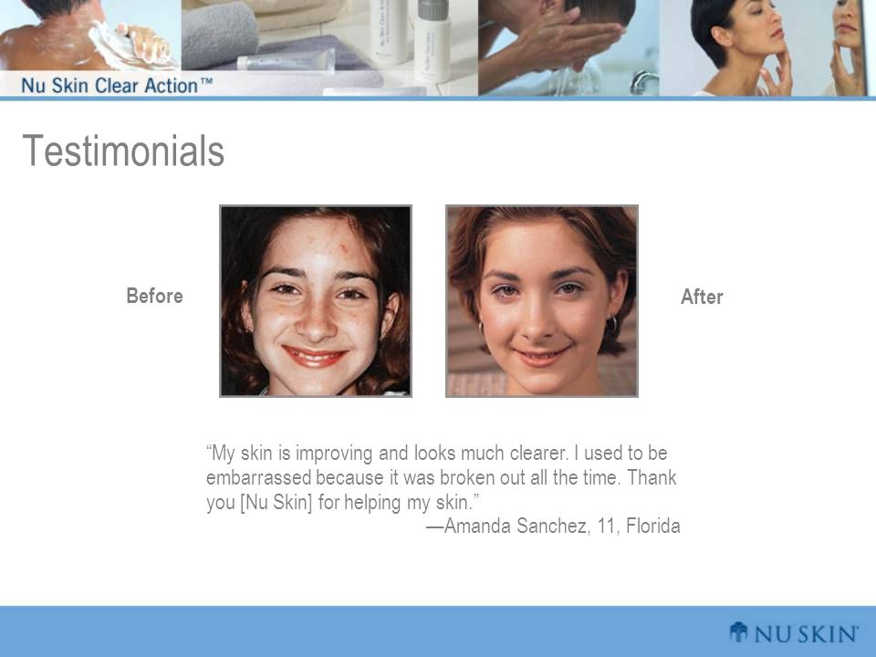 Testimonials Before After