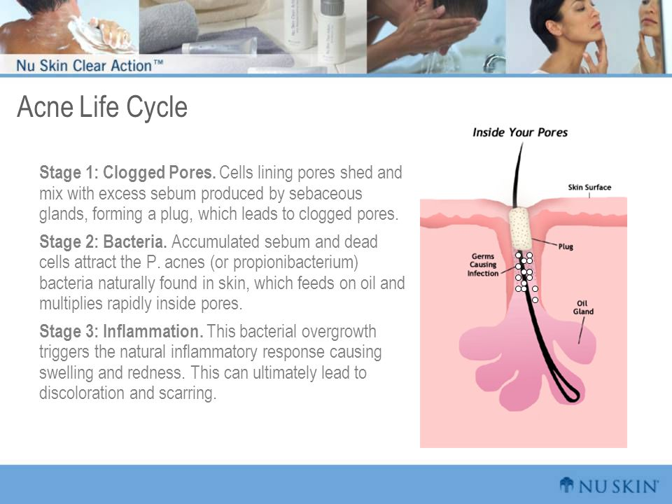 Acne Life Cycle
