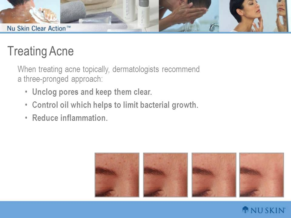 Treating Acne When treating acne topically, dermatologists recommend a three-pronged approach: Unclog pores and keep them clear.
