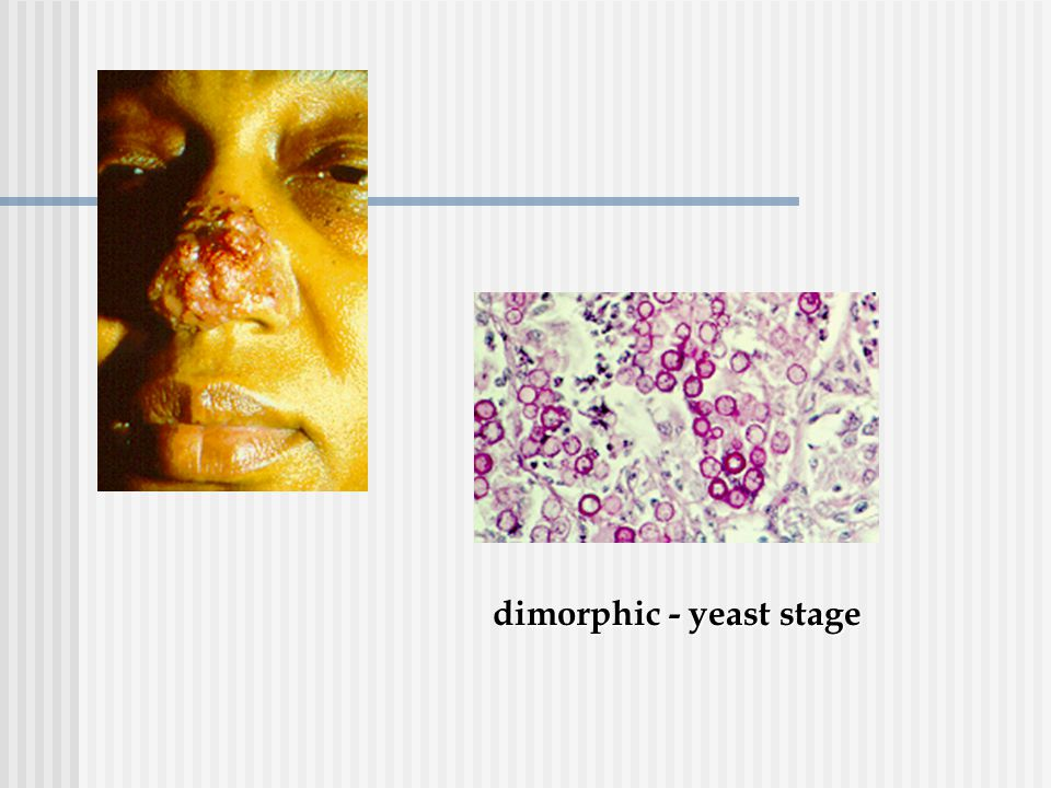 dimorphic - yeast stage