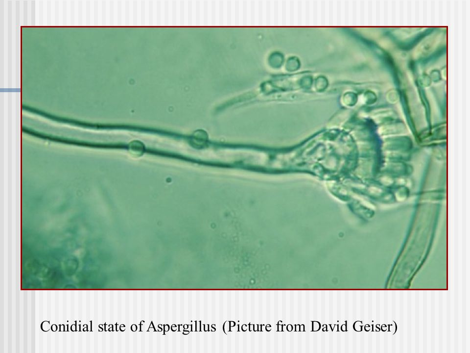 Conidial state of Aspergillus (Picture from David Geiser)