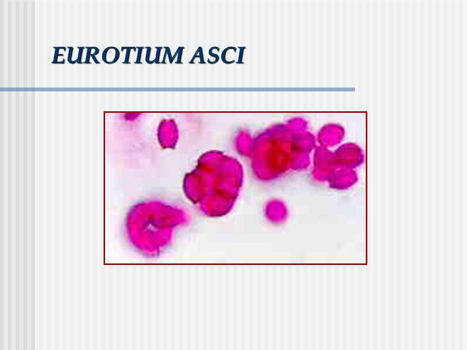 EUROTIUM ASCI