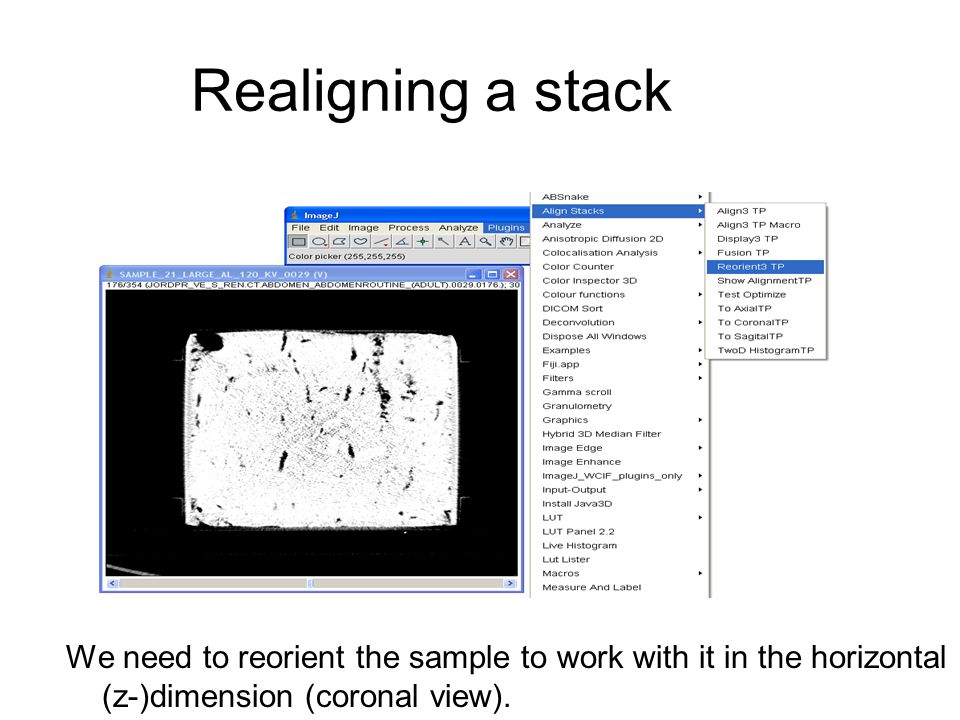 Realigning a stack We need to reorient the sample to work with it in the horizontal (z-)dimension (coronal view).