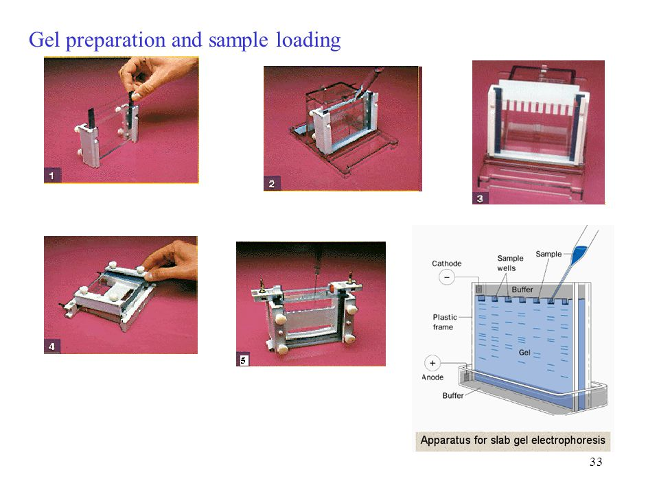 Gel preparation and sample loading