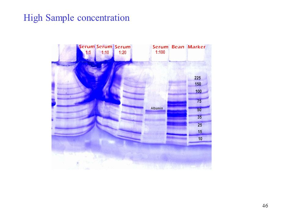 High Sample concentration