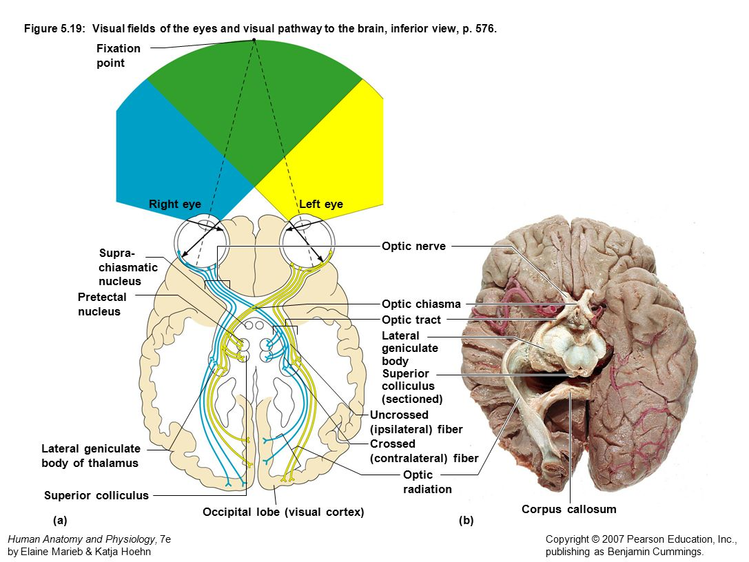 (contralateral) fiber Lateral geniculate body of thalamus