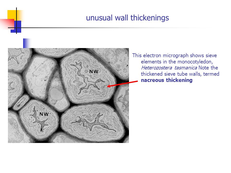 unusual wall thickenings