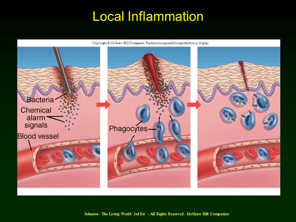 Local Inflammation Copyright © McGraw-Hill Companies Permission required for reproduction or display.
