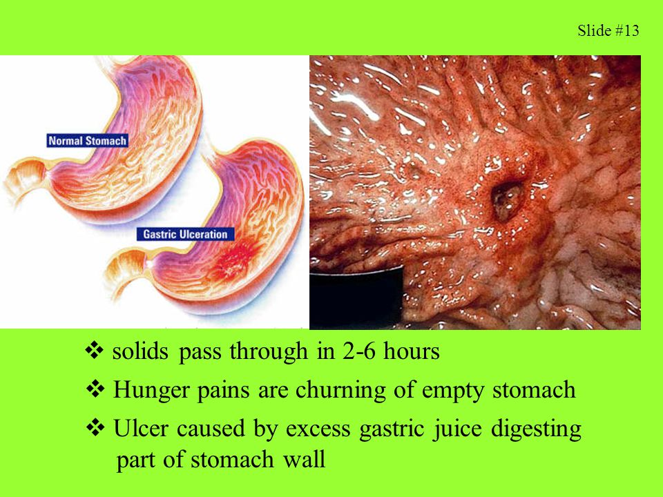 Stomach Factoids What stimulates gastric juice flow 1) thought,