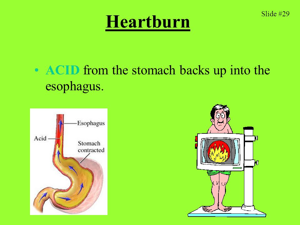 Heartburn ACID from the stomach backs up into the esophagus. Slide #29