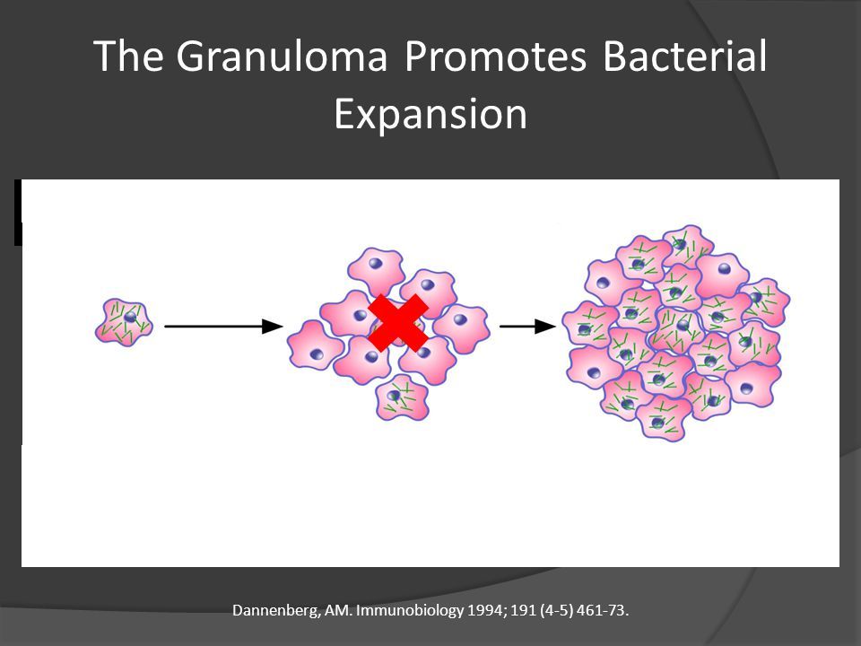 The Granuloma Promotes Bacterial Expansion