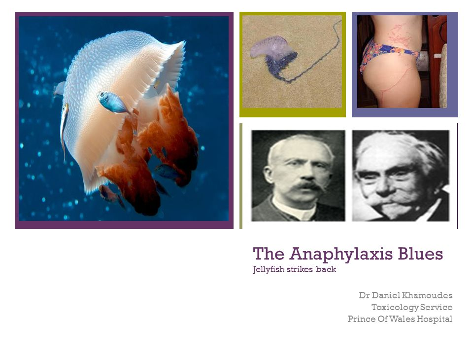 The Anaphylaxis Blues Jellyfish strikes back