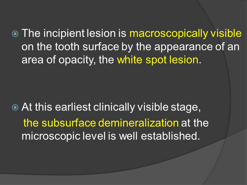 The incipient lesion is macroscopically visible on the tooth surface by the appearance of an area of opacity, the white spot lesion.