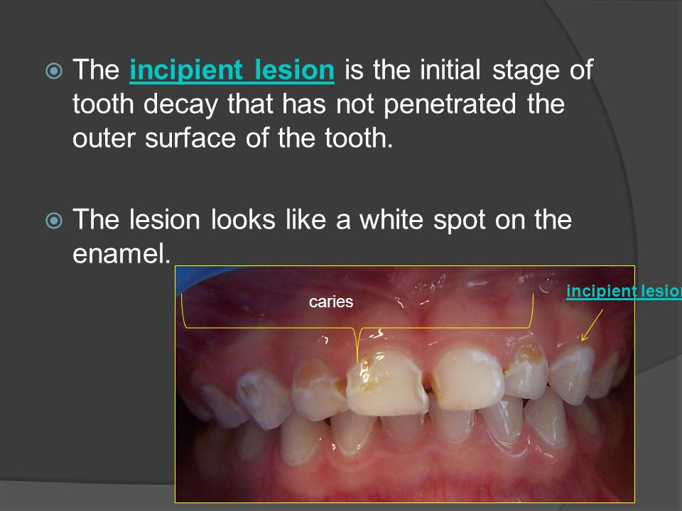 The lesion looks like a white spot on the enamel.