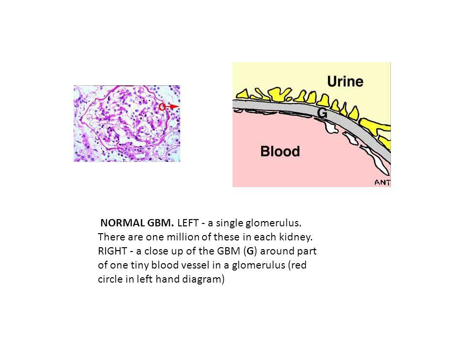 NORMAL GBM. LEFT - a single glomerulus
