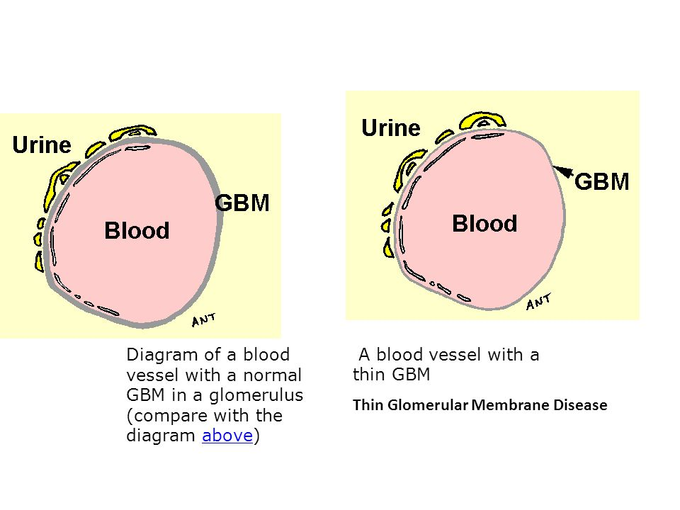 Diagram of a blood vessel with a normal GBM in a glomerulus (compare with the diagram above)