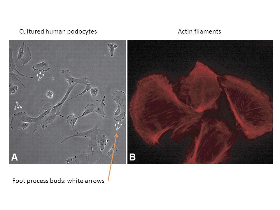 Cultured human podocytes Actin filaments