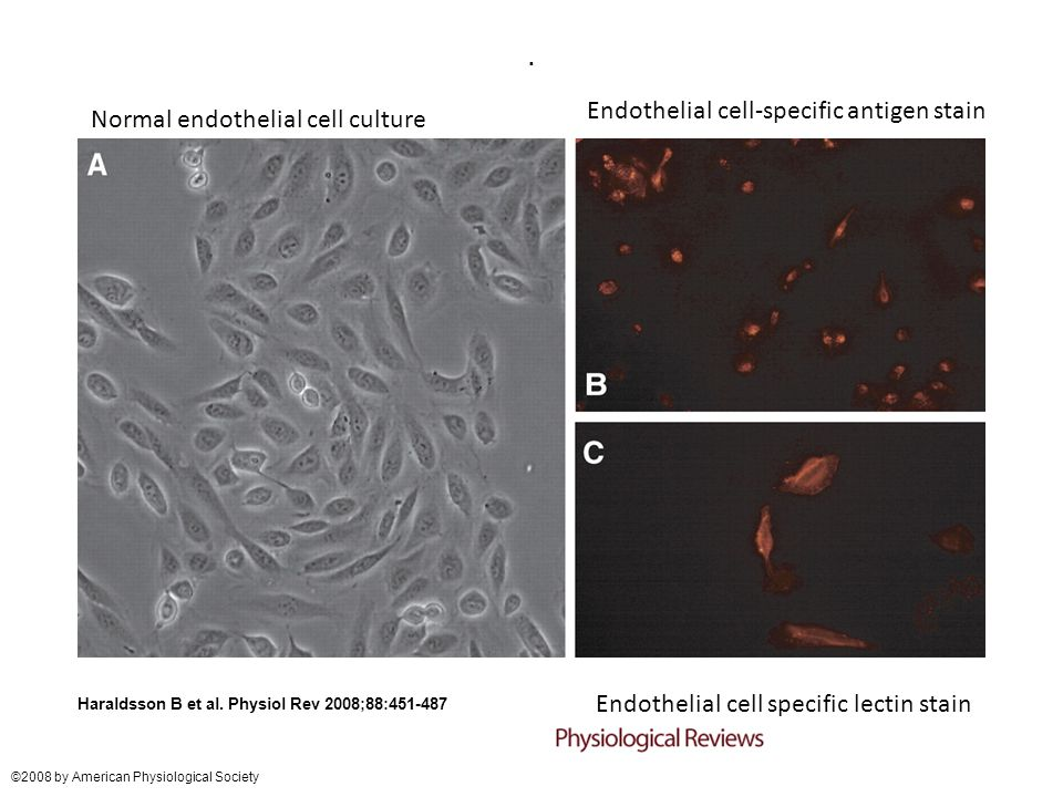 Endothelial cell-specific antigen stain